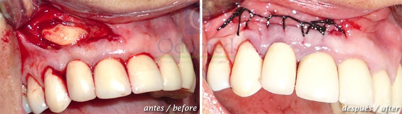 Retained teeth surgery
