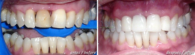 Metal free porcelain crowns
