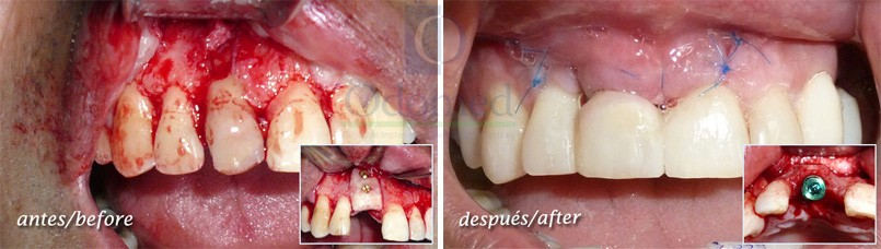 Surgery of soft tissue, bone and dental implant